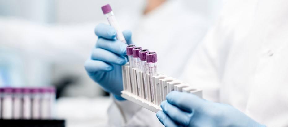 Koronavirus sijoittaminen